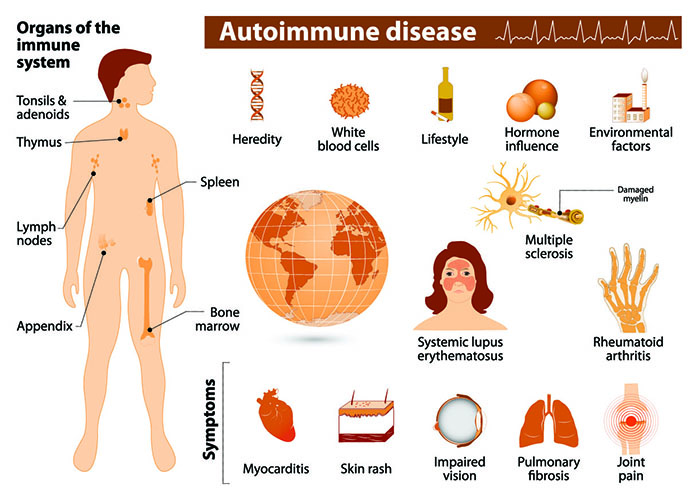 Alleviate The Symptoms Of Autoimmune Diseases With Chinese Medicine