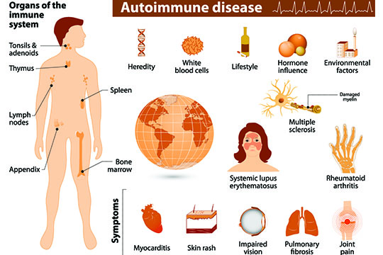 Natural Treatment Of Autoimmune Diseases In Overland Park, KS - Eastern Healing Solutions