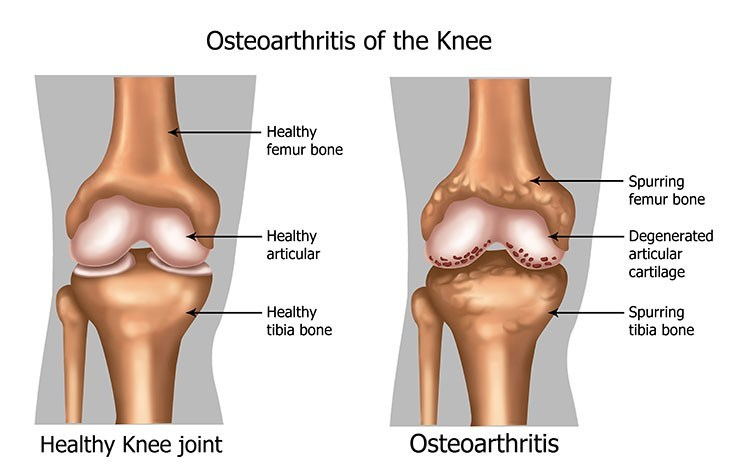 Osteoarthritis Pain Relief In Overland Park, KS - Overland Park  Acupuncture Clinic