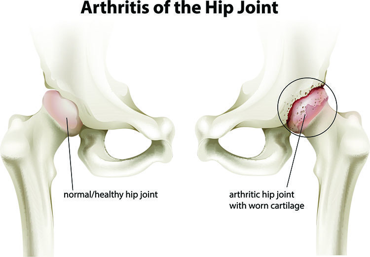 Arthritis Pain Relief In Overland Park, KS - Overland Park  Acupuncture Clinic