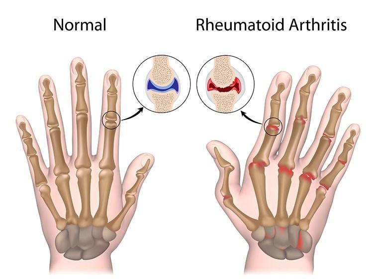 Rheumatoid Arthritis Pain Relief In Overland Park, KS - Overland Park  Acupuncture Clinic
