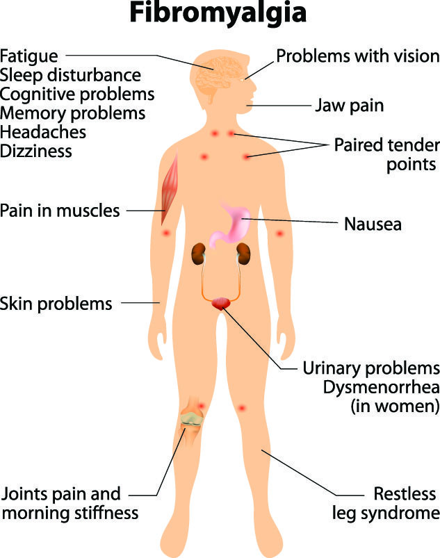 Fibromyalgia Natural Treatment With Chinese Medicine - Overland Park  Acupuncture Clinic